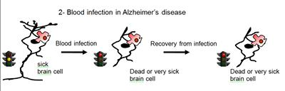 Blood infection in Alzheimer's...