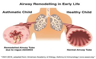 Airway remodelling in early life