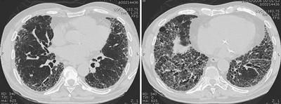 Chest high resolution computed tomography of a patient with idiopathic pulmonary fibrosis