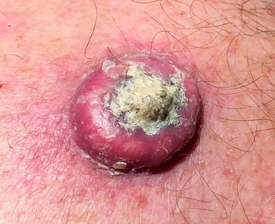 Skin cancer (seen here) is the most common cancer in the UK and worldwide.